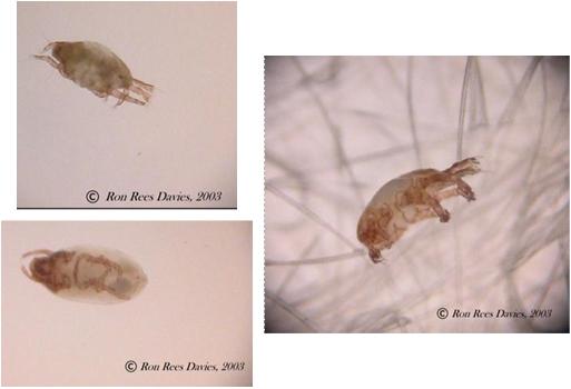 demodex mites symptoms #10