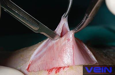 Human Castration Healed Medirabbit
